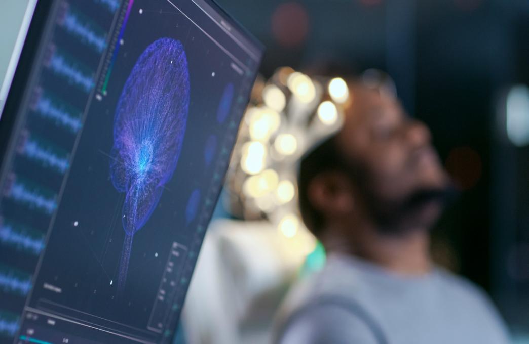 Lundbeckfondens hjerneforskningspris, The Brain Prize 2019, går til fire franske forskere, der har opdaget den arvelige sygdom, CADASIL. Sygdommen er en af årsagerne til såkaldte mikroblodpropper; verdens mest udbredte arvelige blodpropsygdom i hjernen.